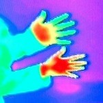 A_thermal_image_demonstrating_the_loss_of_heat_in_a_Reynaud's_sufferer