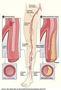 Pheral Artery Disease